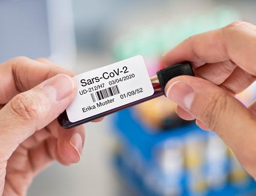 Corona-Tests: So gelingt die effiziente Beschriftung von Proben mit Brother Etikettendruckern
